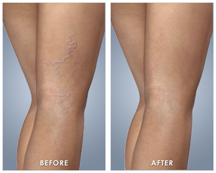 Varicose Veins Treatment In Miami Abella Health