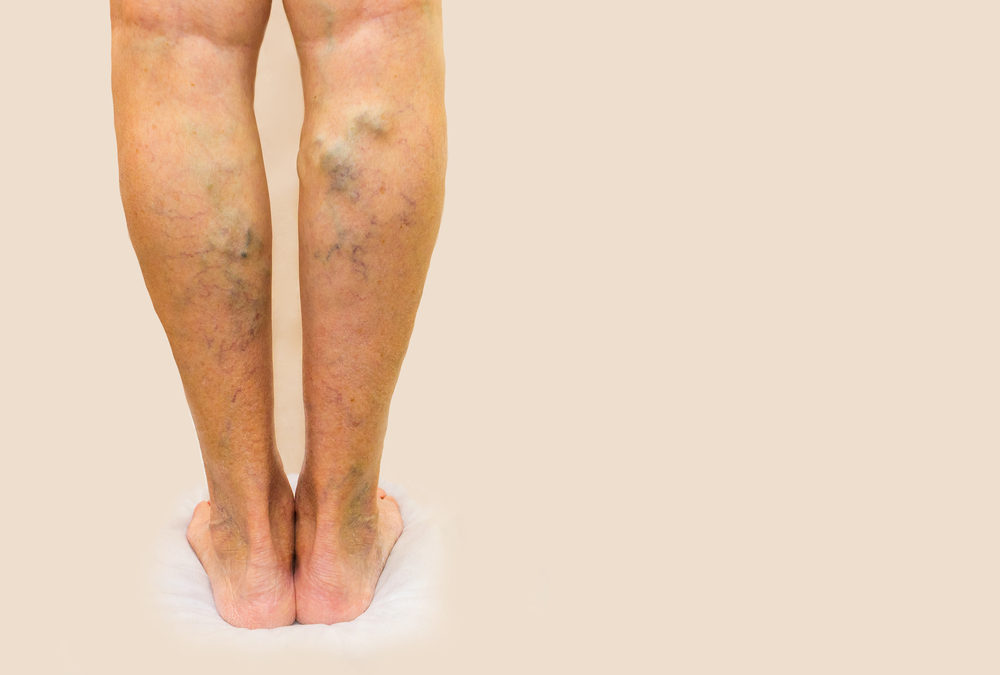 What are the symptoms of venous disease?