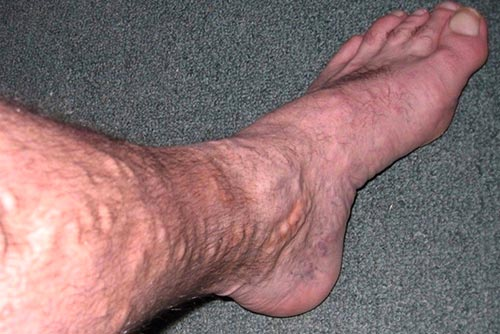 Debunking Myths About Varicose Veins