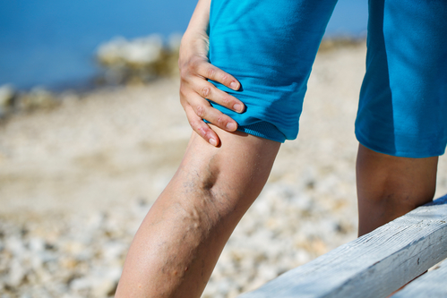 Effect of Summer Heat on Venous Issues