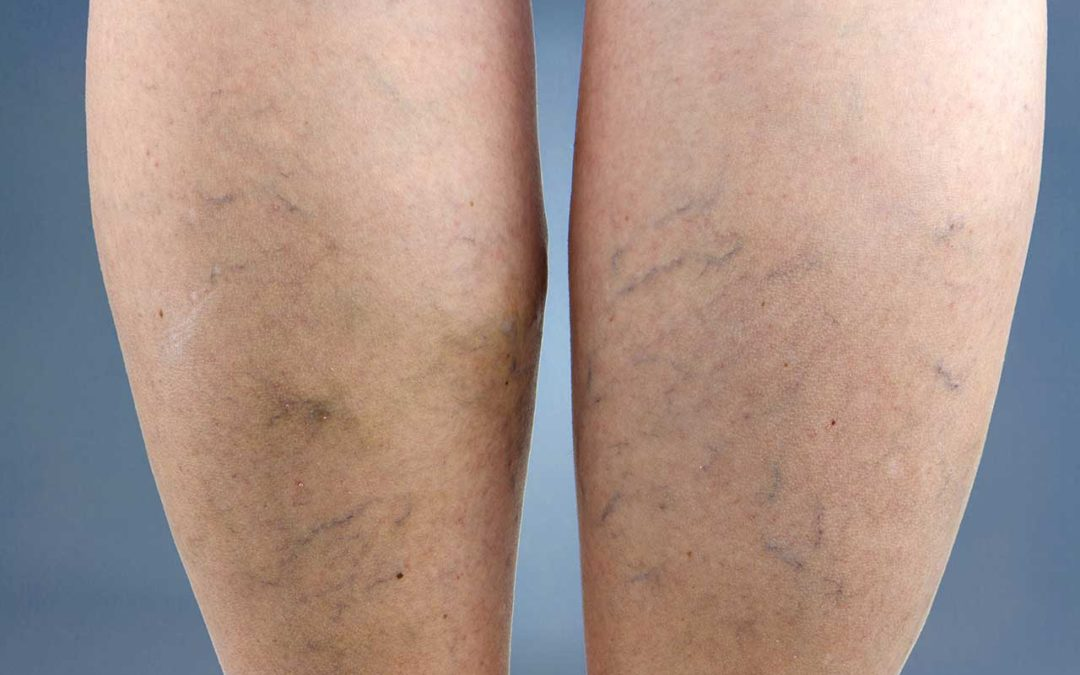 Dealing-with-Varicose-Veins