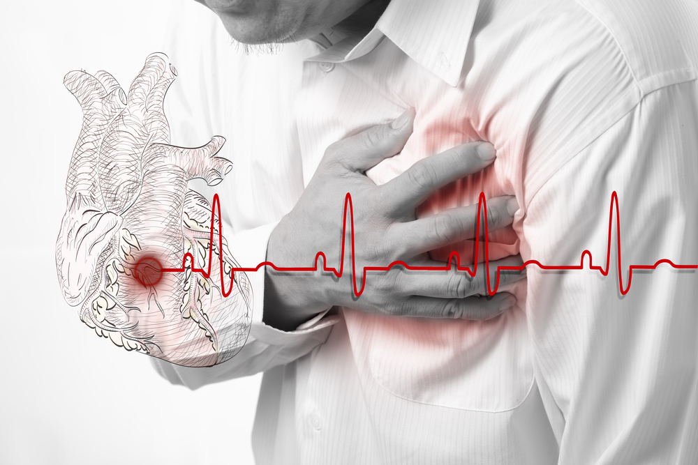 Do You Know All the Triggers of a Heart Attack?